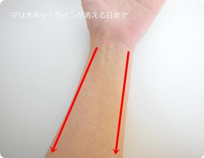 親指側・小指側、どちらも手首から肘へ流す