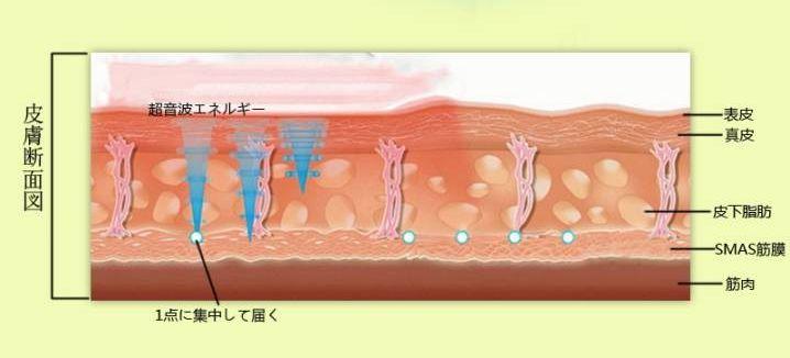 HIFU SMS筋膜