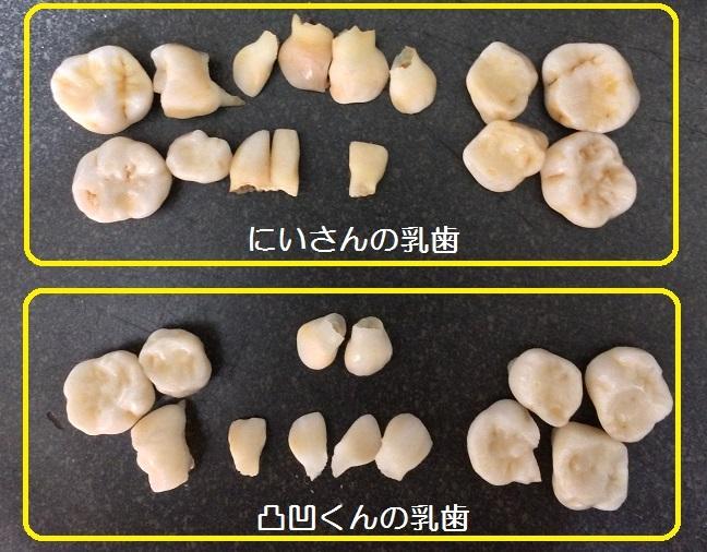 こどもたちの乳歯