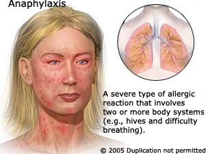 Anaphylaxis#