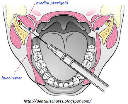 During an inferior alveolar nerve block the needle ideally passes