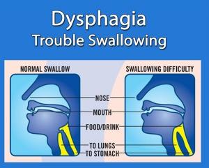 dysphagia-image.jpg