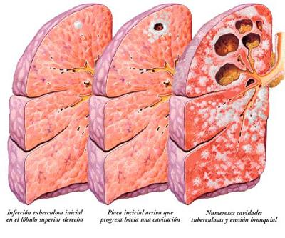 fig-2-humanorgans-orgtuberculosis.jpg