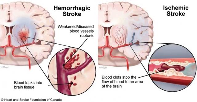 stroke_hem_iso.jpg