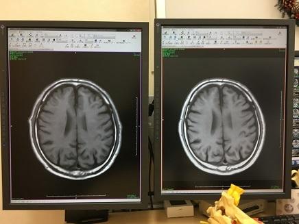 3312017 MRI野村脳神経科 S4