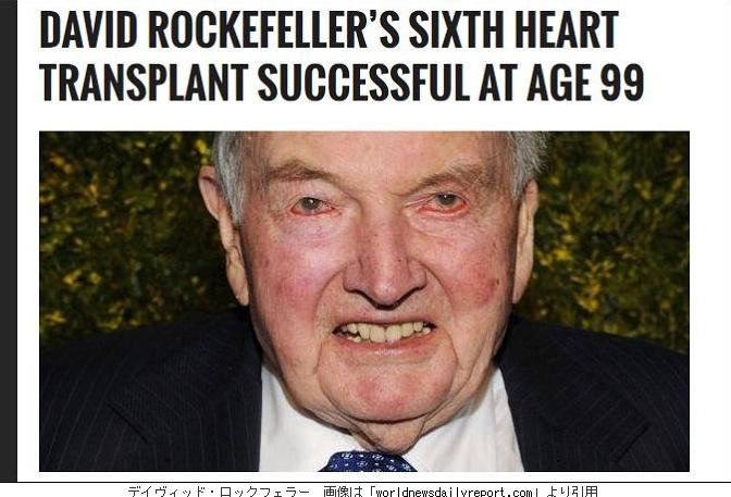 心臓6っ回取り替えた