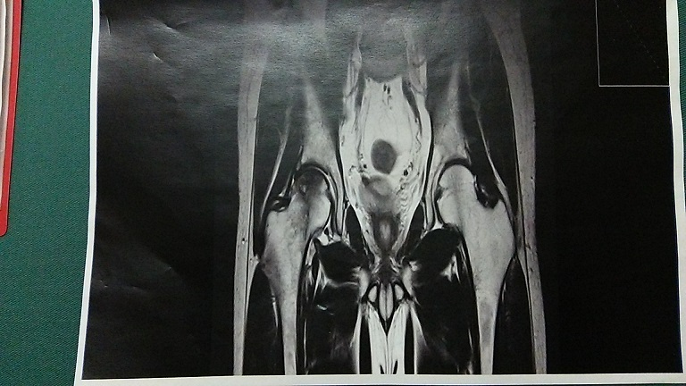 特発性大腿骨頭壊死症