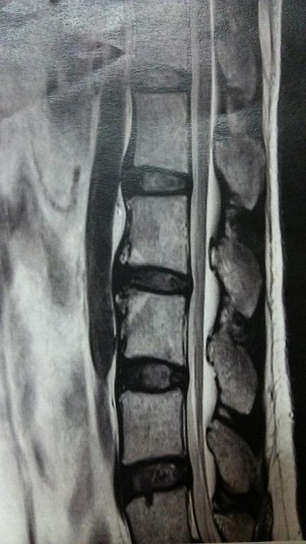 特発性大腿骨頭壊死症の方の腰部