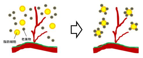 細胞間に溜まった老廃物が脂肪細胞に付着して巨大化