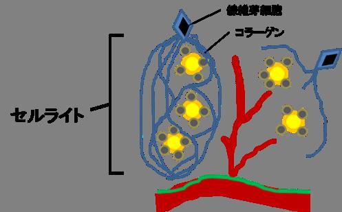 線維芽細胞が脂肪組織と老廃物の固まりに絡みつく(セルライト完成)