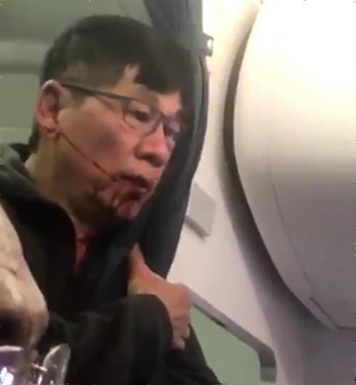 ユナイテッド航空 人種差別 過剰予約 オーバーブッキング