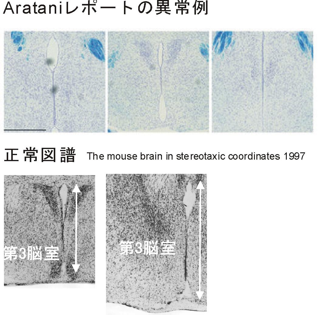 第3脳室Aratani正常比較