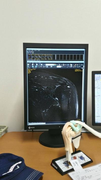 左肩のMRI 1