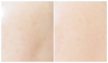 10日間でシミ、くすみ、色むらが薄くなる!?スキンケア部門で1位の美容液【BIHAKU ホワイトエッセンス】初回無料!