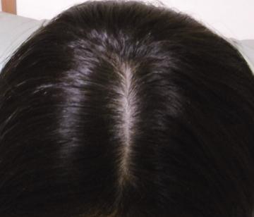 白髪を減らしてボリュームアップ!血液の巡りを整える、口コミで人気のアキョウサプリ【黒ツヤソフト】
