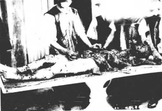 済南事件日本人惨殺遺体7