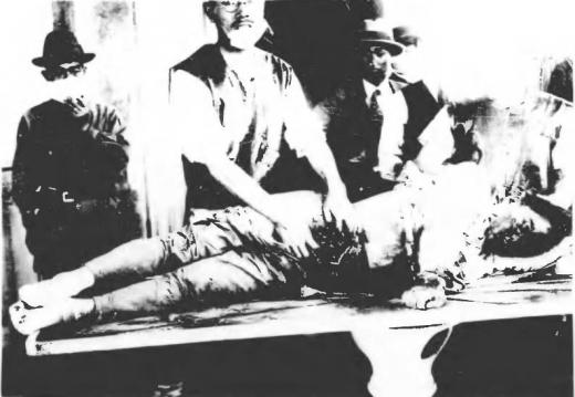 済南事件日本人惨殺遺体10