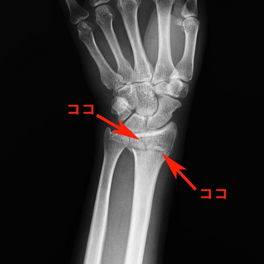 20170307_fracture.jpg