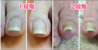 巻き爪 1段階~2段階