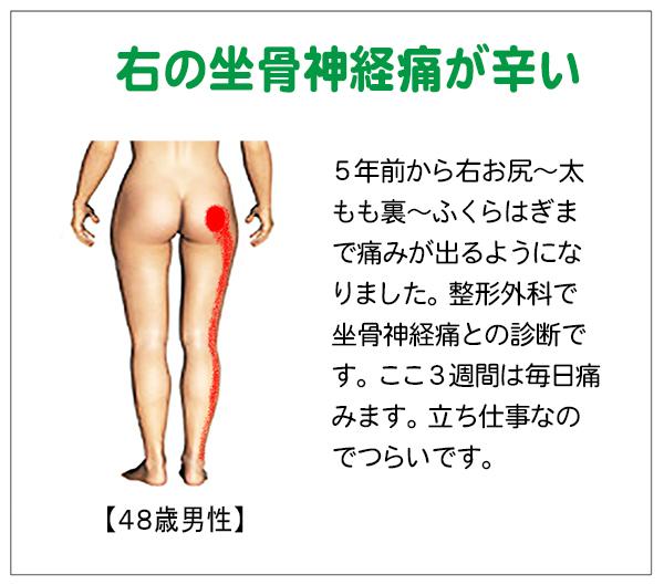 14-10-2a坐骨神経痛