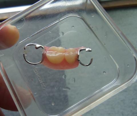 1704_07入れ歯2