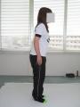 直井幸恵さん施術前顔隠し