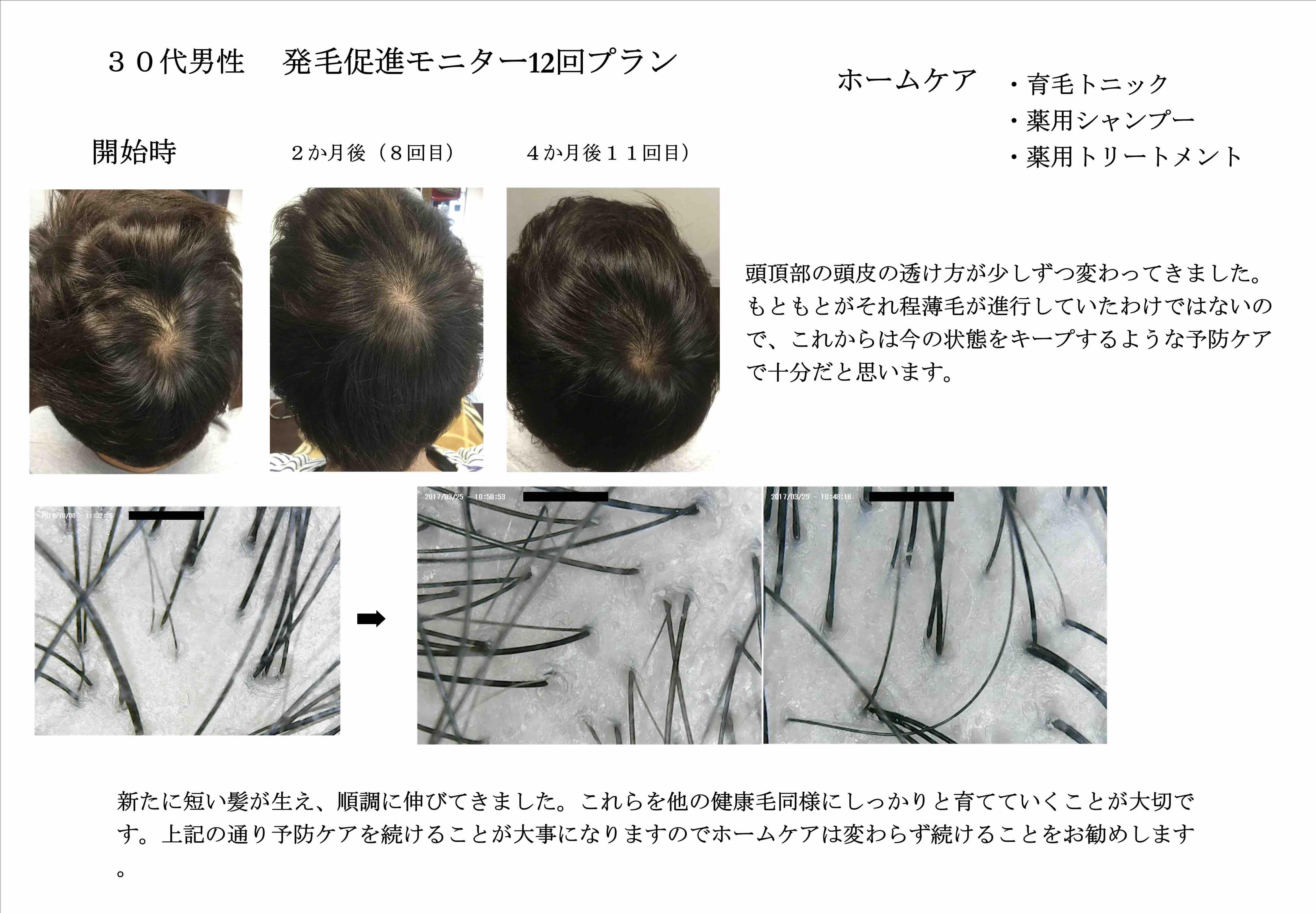 【発毛促進】30代男性スカルプモニター